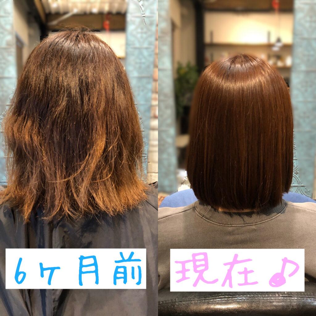 方法 髪の毛 生える